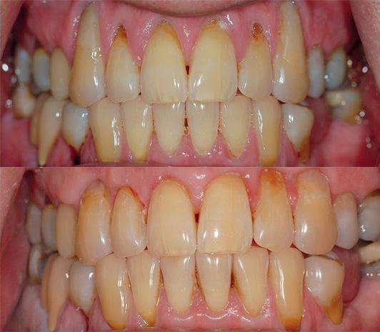Gum grafts