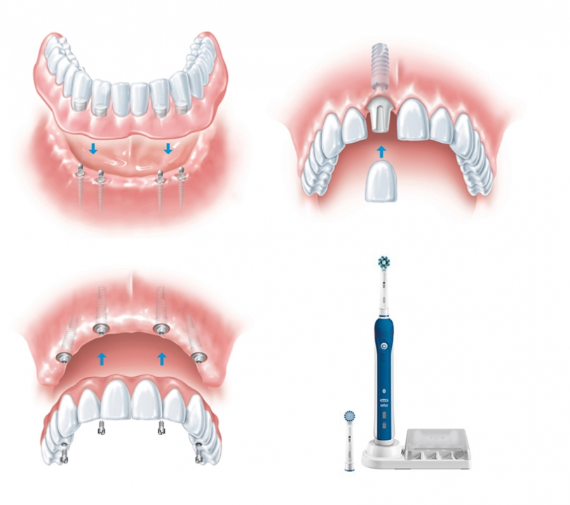 Full arch and single tooth implants with toothbrush