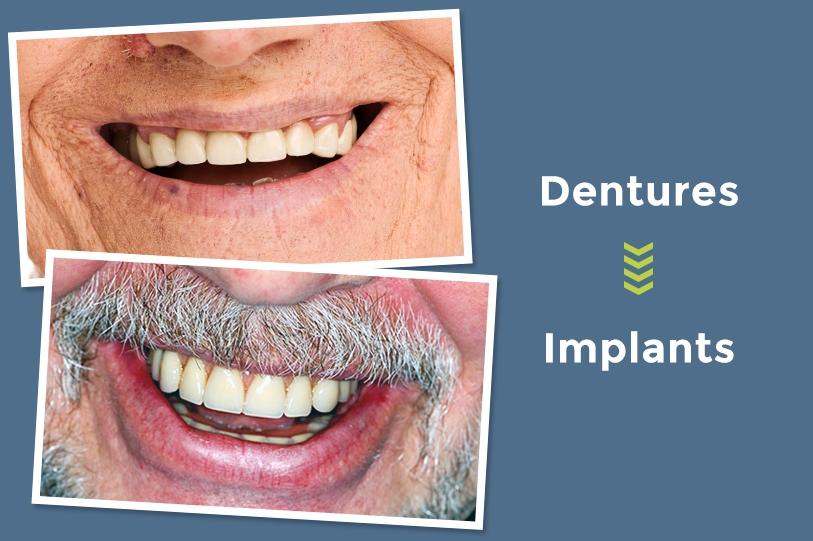 Evolution of dentures