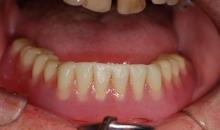 Lower denture in situ