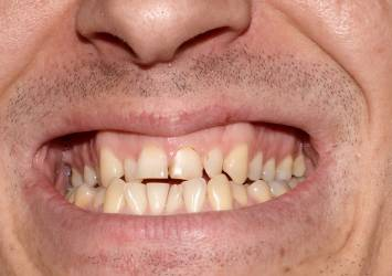 Man with acid erosion on his teeth.