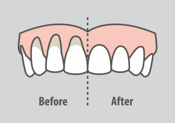 Gum grafts before and after